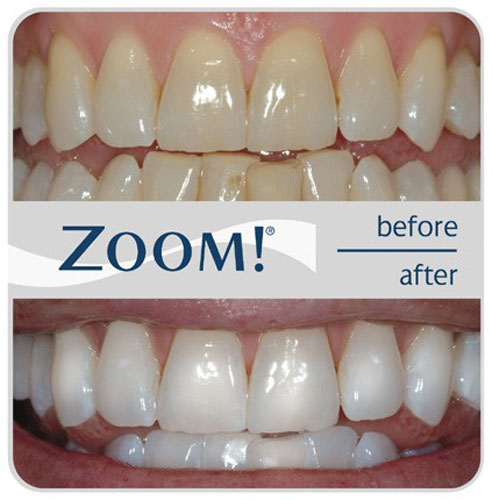 Marion cosmetic dentist | Zoom! teeth whitening | Dr. Wilson